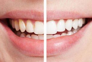 Higienizacja, czyli kiedy warto odwiedzić gabinet stomatologiczny?